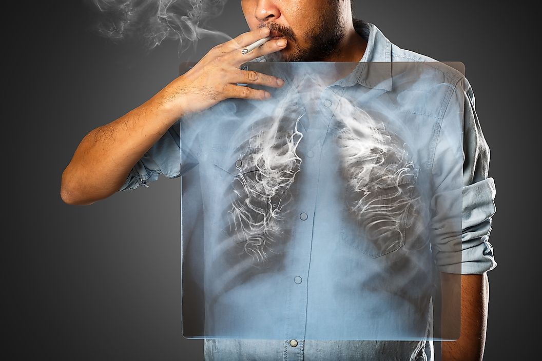 Онкологические заболевания с самым высоким уровнем смертности